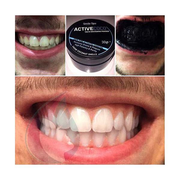 charbon pour les dents